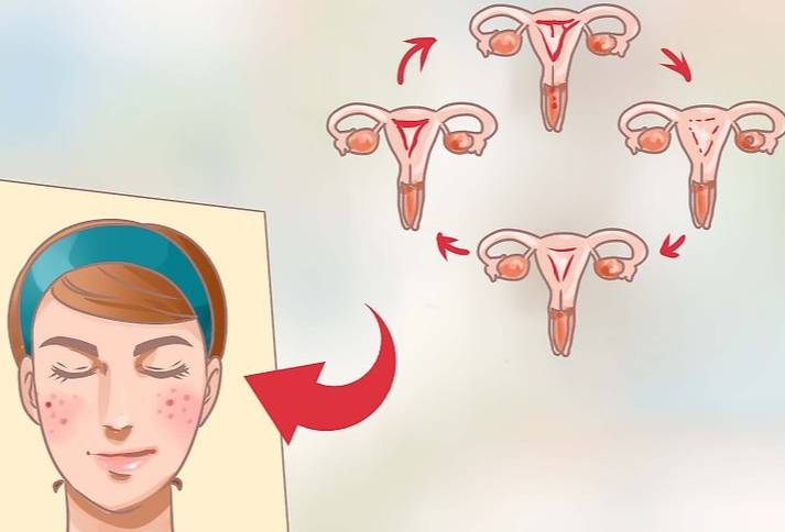 Acné : régulation hormonale et croissance de l' adolescent à l' adulte